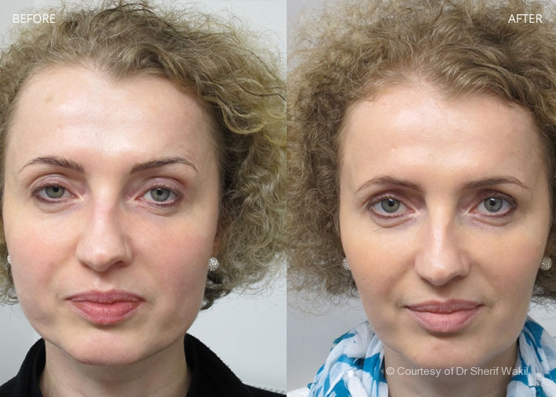 Jaw Line Slimming London Bruxism Treatment Dr Sw Clinics