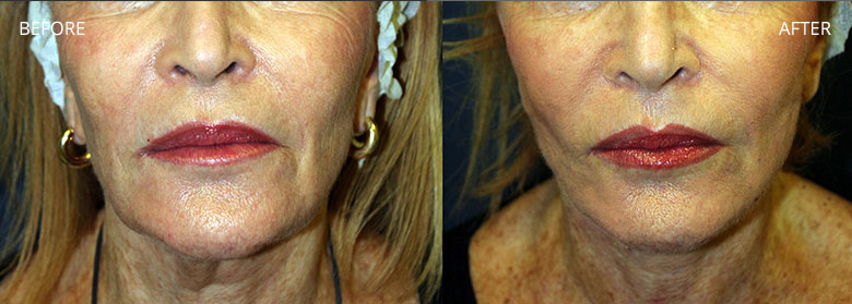 Silhouette Soft Thread Lift London | The Puppet Face Lift