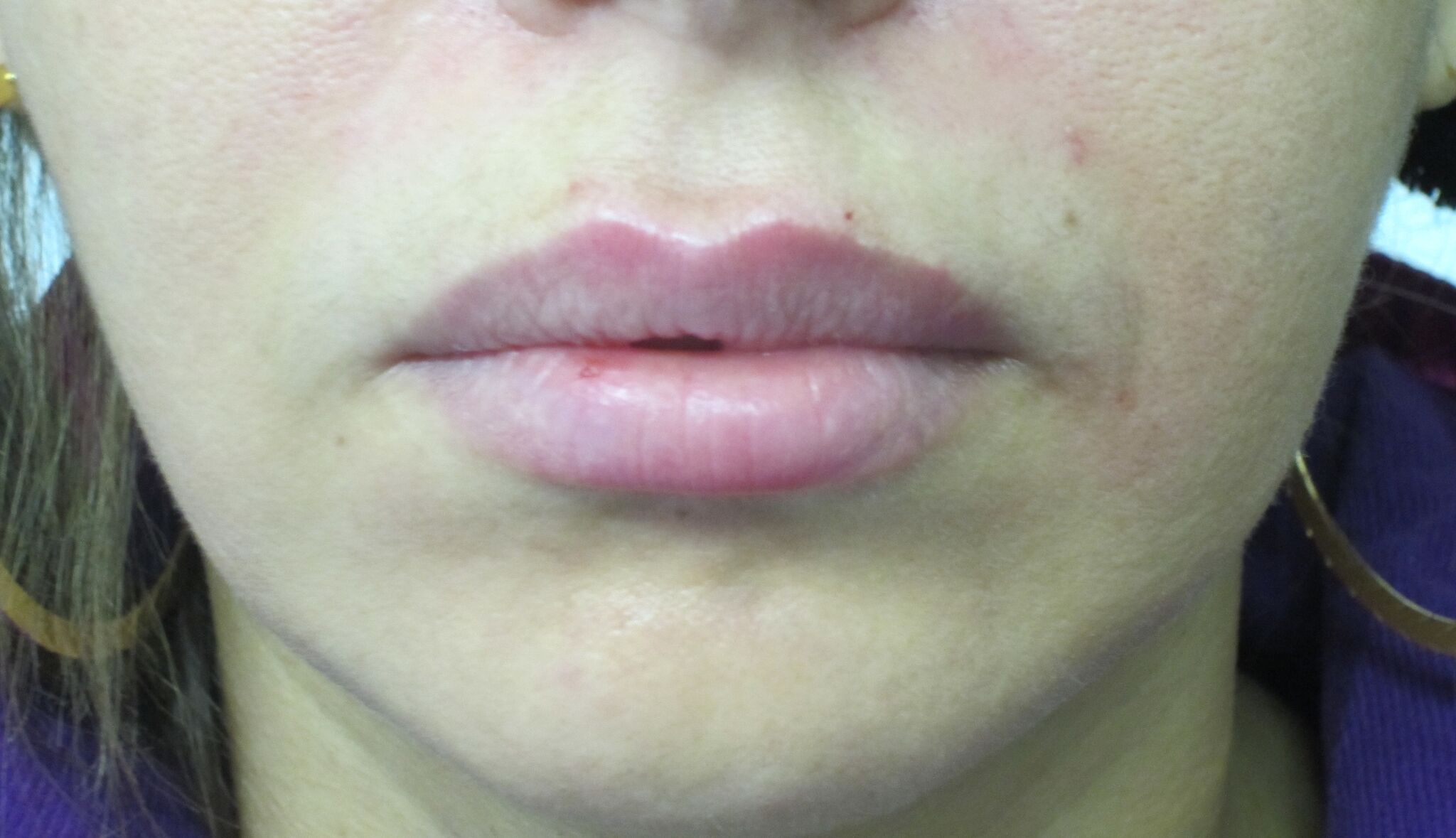 Lip Definition After